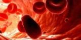 Названы лучшие способы профилактики анемии